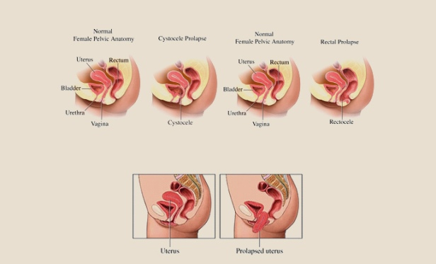 http://www.womenscentre.net/index.php?option=com_rsblog&view=post&id=29:determining-the-stages-of-prolapsed-uterus&Itemid=188